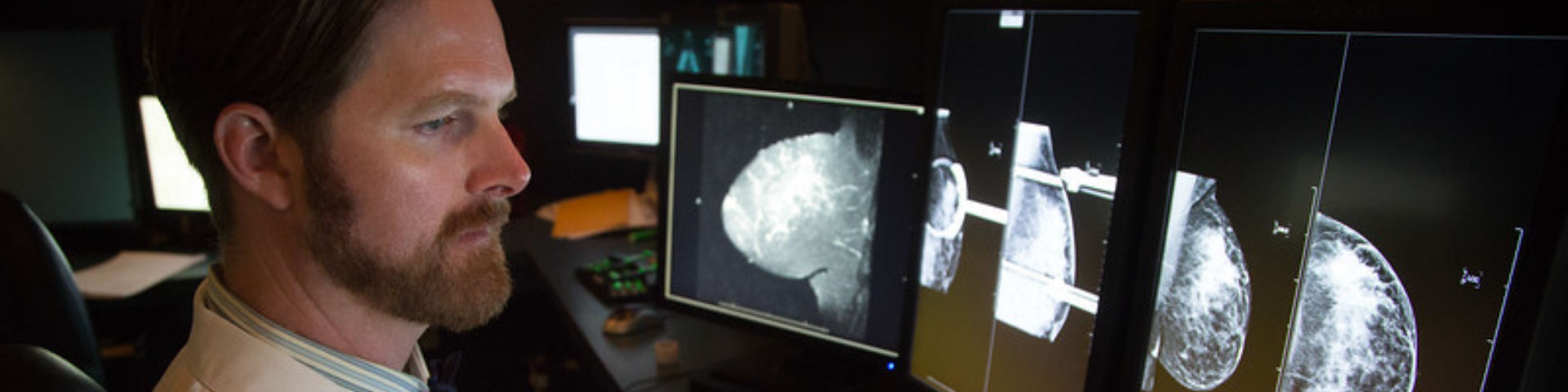 Mammography Header Image